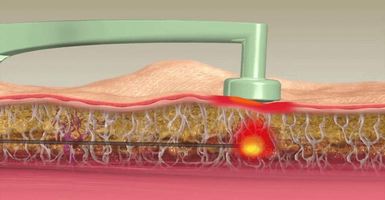 Ультразвуковая липосакция жировых отложений